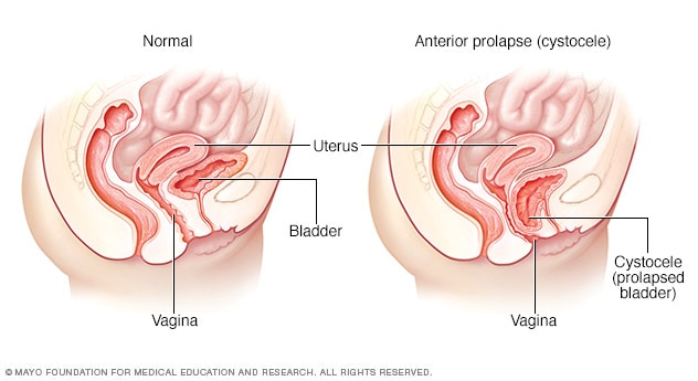 Normal Female Pelvic Anatomy vs. Cystocele (bladder prolapse). A dropped or prolapsed bladder (cystocele) occurs when the bladder bulges into the vaginal space. It results when the muscles and tissues that support the bladder give way.